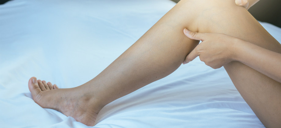Varizes: Costureira alivia dor nas pernas com tratamento e pode voltar a trabalhar