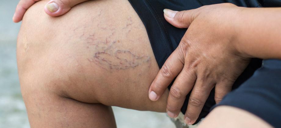 As varizes podem aumentar com a menopausa?