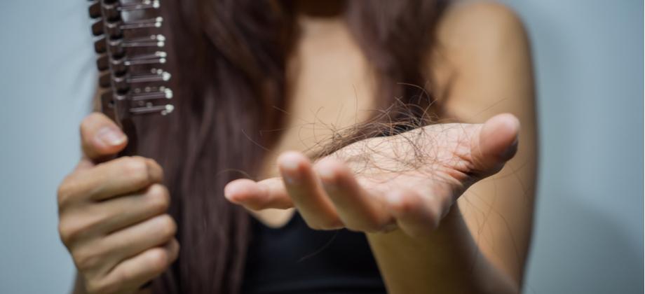 Calvície: É normal o cabelo continuar caindo no início do tratamento?