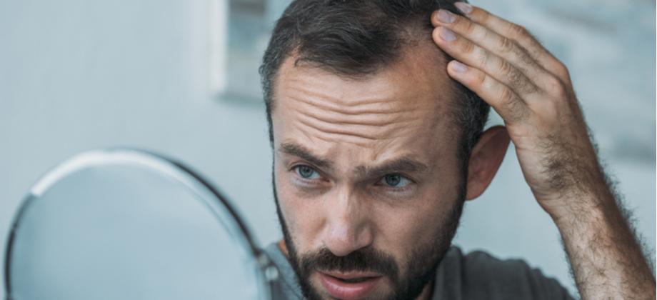Vencendo a calvície: Quais cuidados podem complementar seu tratamento?