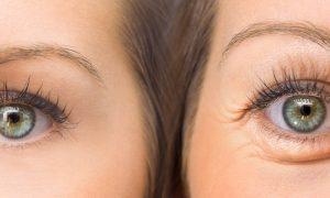 O uso de compressas pode ajudar a diminuir as bolsas nos olhos?