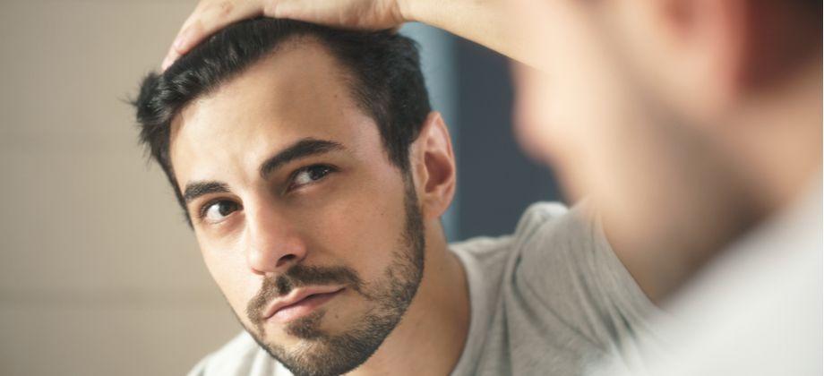 Calvície: Por que é importante começar com o tratamento logo nos primeiros sinais?