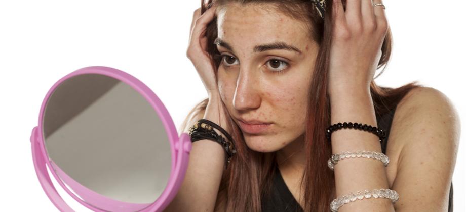 Como manter a autoestima durante o tratamento para a acne?