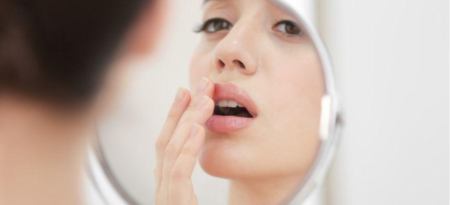 Quanto tempo duram as feridas do herpes durante o tratamento com lisina?