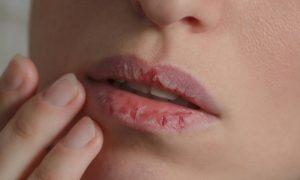 Quais são os principais fatores que causam o ressecamento dos lábios?