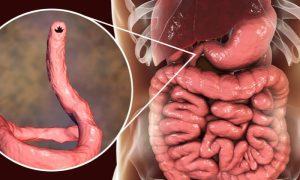 Parasitoses intestinais: como identificar um quadro de amarelão?