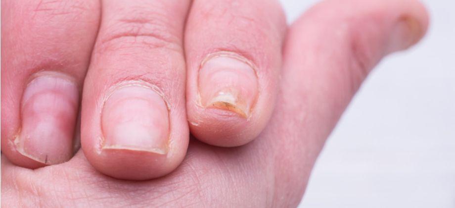 Síndrome das unhas frágeis: Toda a área da unha fica comprometida ou só as pontas?