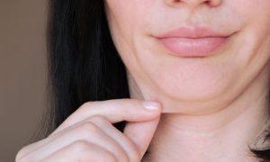 Você conhece o processo de perda de sustentação da pele? Saiba mais!