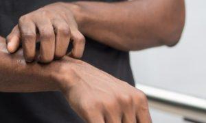 Quais são as infecções de fungos que mais afetam a pele?