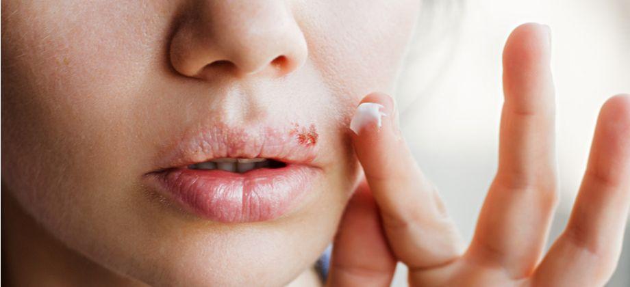 Quais cuidados um paciente com herpes deve ter para não espalhar a infecção para outras áreas do corpo?