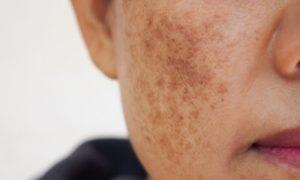 Como um clareador atua na redução de manchas escuras da pele?