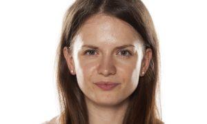 Por que é necessário controlar, e não eliminar, a oleosidade da pele?