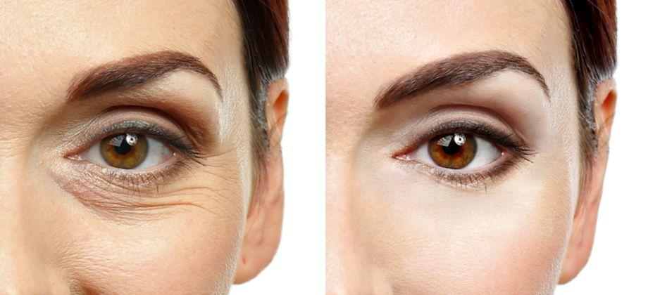 Mito ou verdade: O movimento da musculatura do rosto é um fator para o aparecimento de rugas?