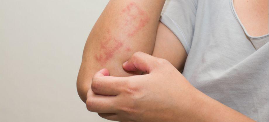 Pele seca: Coçar áreas irritadas pode piorar o problema?