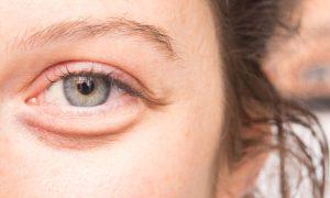 Ginkgo biloba: Saiba como esse ativo ajuda a reduzir bolsas nos olhos