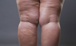 A obesidade e o sobrepeso facilitam o aparecimento das varizes?