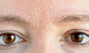 Por que a pele seca pode descamar?