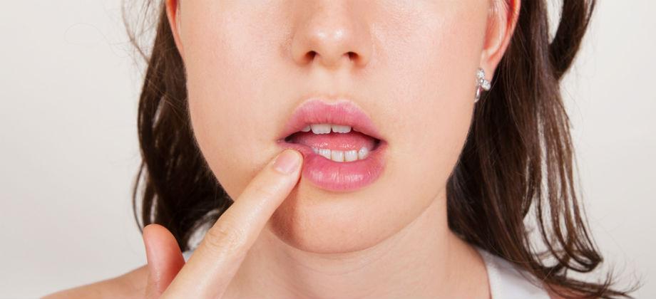 Receitas caseiras são eficientes no combate ao herpes?