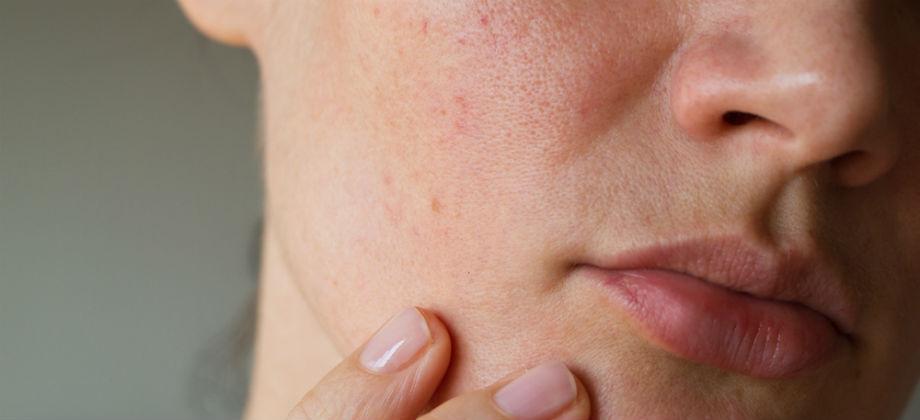As lesões causadas pelo herpes podem ser confundidas com espinhas?
