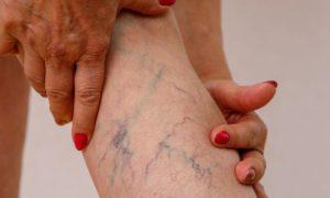 Por que a idade é um fator de risco para as varizes?