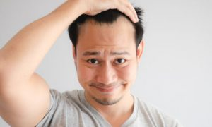 É possível ter entradas no cabelo, mas não desenvolver calvície?