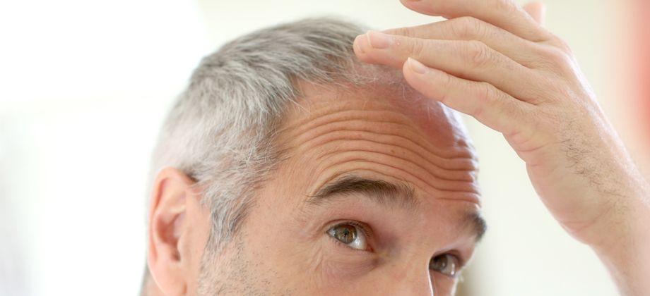 O tratamento contra a calvície é contínuo?