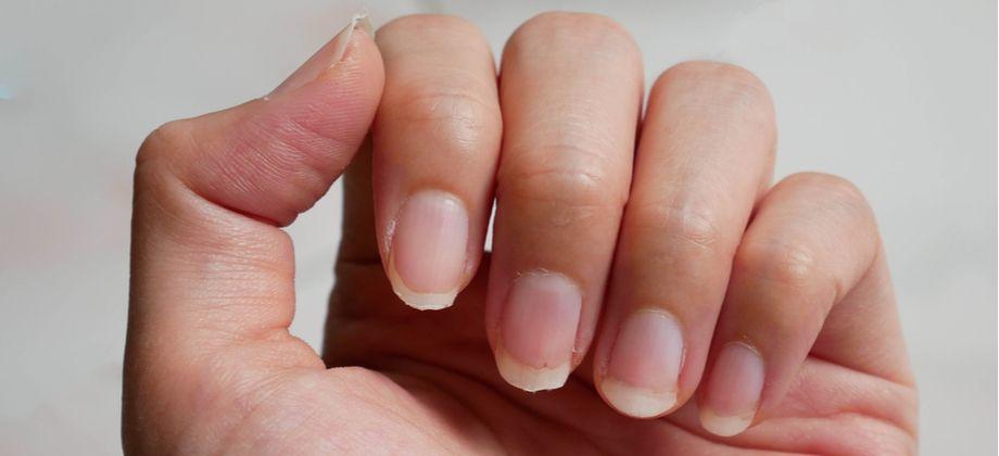 A síndrome das unhas frágeis atinge mais quem tem as unhas compridas?