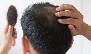 Alterações hormonais podem influenciar na manifestação da calvície?