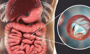 Criptosporidíase: Quais são os sintomas dessa parasitose intestinal?