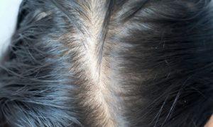 Qual é a relação entre o excesso de oleosidade no couro cabeludo e a calvície?