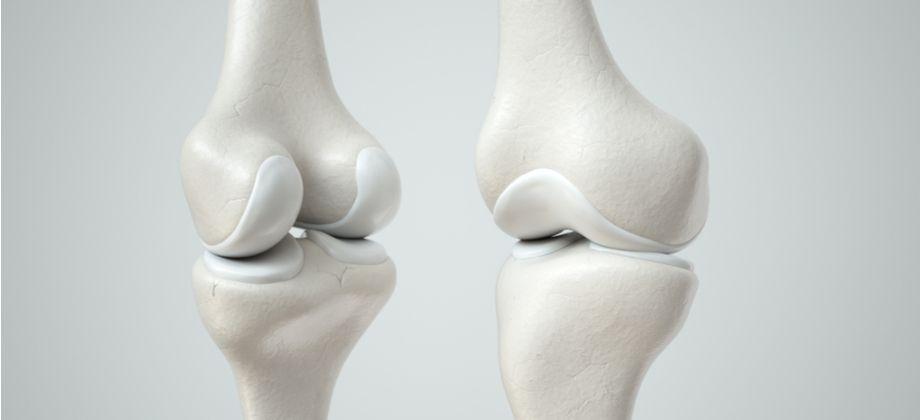 Qual é a função da cartilagem presente nas articulações?