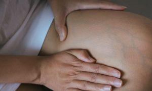 Cirurgia para varizes: em que casos esta forma de tratamento é indicada?
