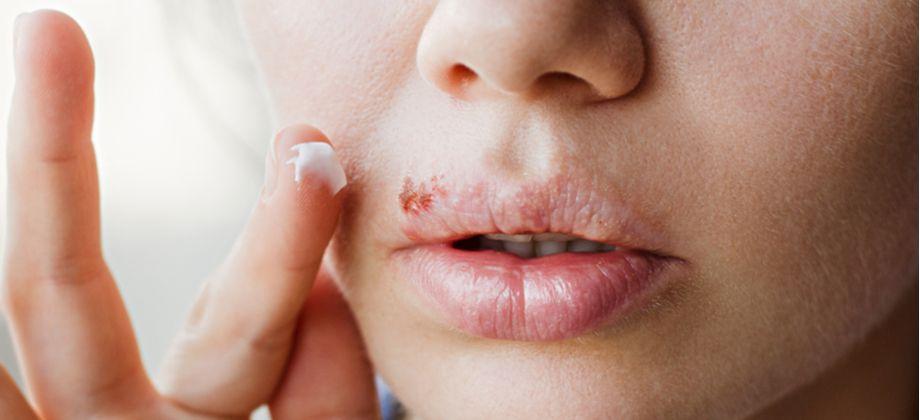 Quais são os principais fatores relacionados à manifestação dos sintomas do herpes?