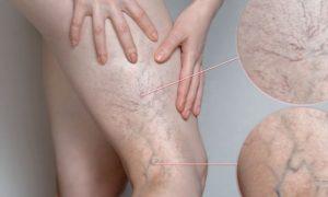 Varizes sem tratamento: Quais são as principais complicações da doença?