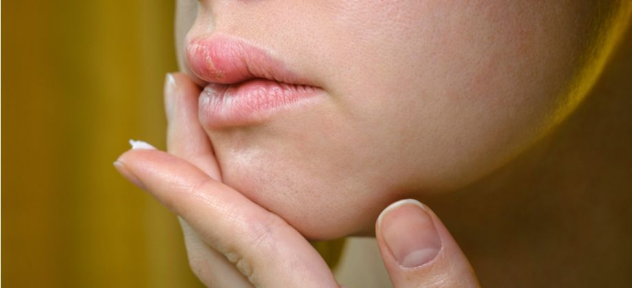 Existe alguma diferença entre o tratamento do herpes labial e o genital?