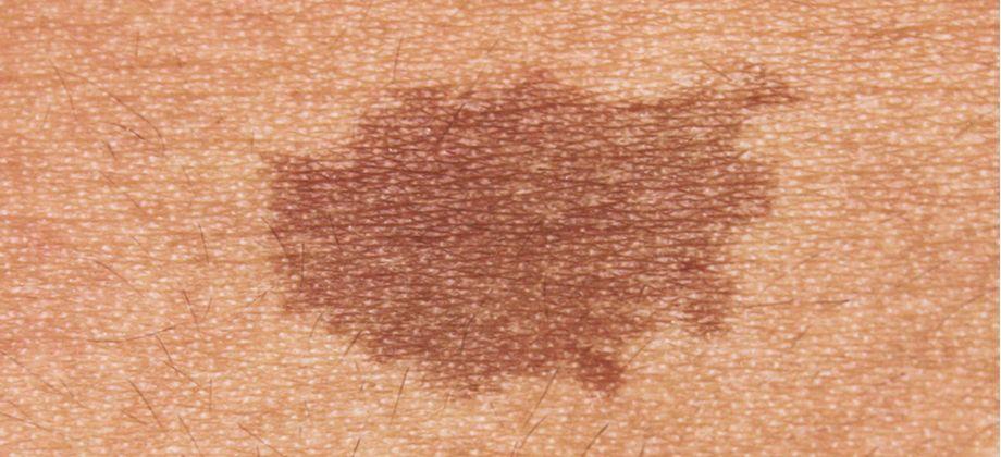 Quais são as principais causas de hiperpigmentação da pele?