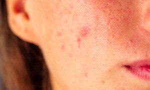Quem tem pele oleosa necessariamente desenvolve acne?