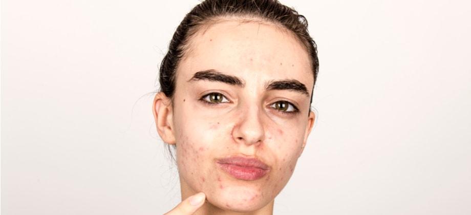 Quais são os problemas mais comuns para quem tem pele oleosa?
