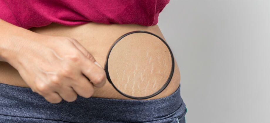 Estrias podem ter relação com a pele desidratada?