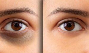 Olheiras: Por que a pele ao redor dos olhos é mais suscetível a esse tipo de manchas?