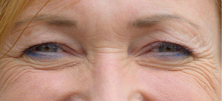 Quais são os sinais do envelhecimento na região dos olhos?