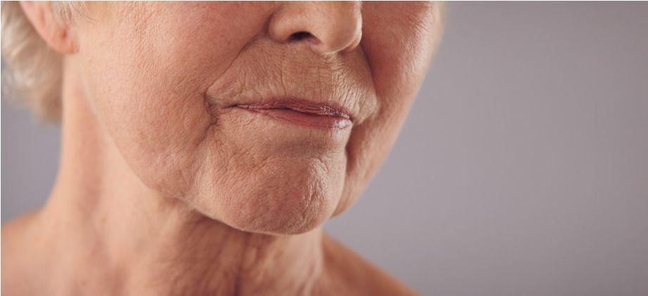 Por que a pele perde elasticidade com o envelhecimento?