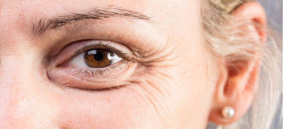 Quais as dicas mais importantes para prevenir rugas na pele?