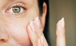 Por que a oleosidade da pele deve ser contida, e não eliminada?