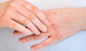 O frio do inverno pode prejudicar quem tem a pele sensível?