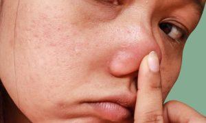 Qual é a relação entre a pele oleosa e o entupimento dos poros?
