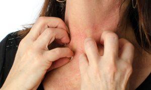 Por que a pele ressecada pode gerar coceira?