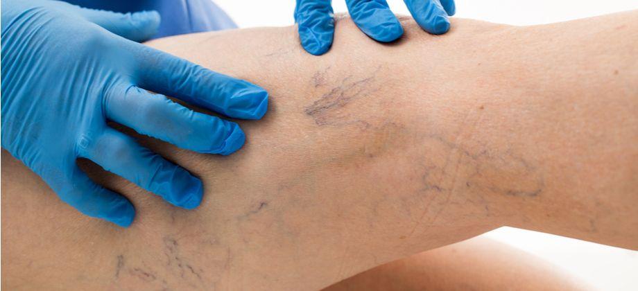 Quais são as alterações de pele causadas pelas varizes?