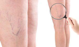 A dor nas pernas causada pelas varizes tem alguma característica específica?