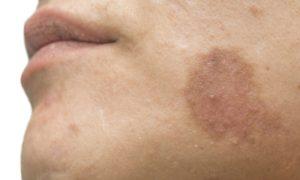 Quais são as principais causas de manchas escurecidas no rosto?